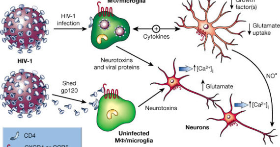 HIV-related-brain-damage-HAND-570x300